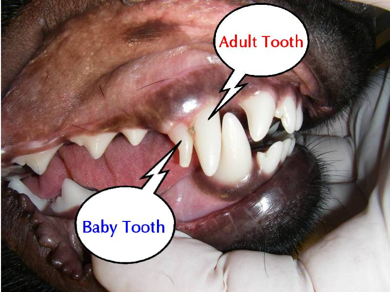 Hopeless retained deciduous teeth in adults
